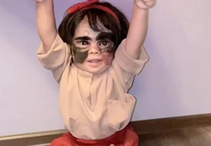 После операции в Краснодаре мать девочки «с маской Бэтмена» показала результат