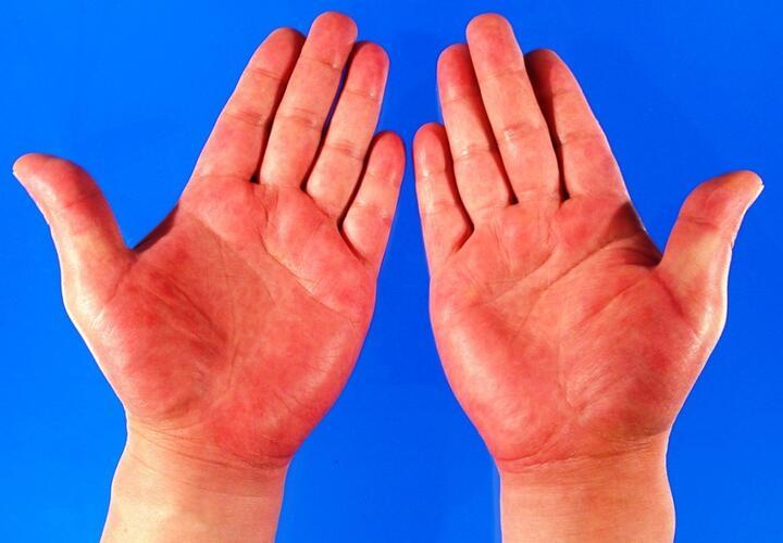 Красные руки могут быть симптомом смертельной болезни