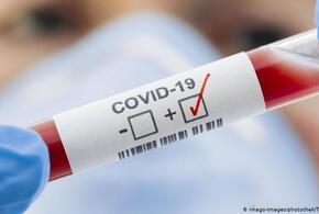 В Краснодарском крае за сутки умерли 14 человек с COVID-19