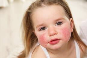 Внимание, аллергия: врач рассказал о нежелательных продуктах на новогоднем столе